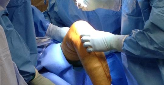 El momento de la cirugía debe llegar después de una compleja y adecuada preparación