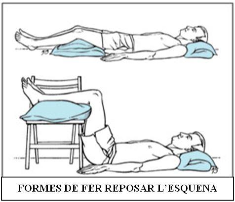 Formes per reposar l'esquena
